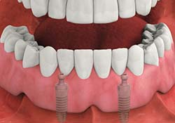 Dental implants provide a better solution for missing teeth than dentures