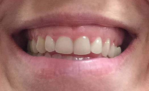 Gum lifts are a cosmetic dentistry option for fixing a gummy smile.
