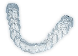 Invlsalign clear braces are an alternative to traditional braces