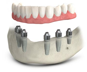 TeethXpress full-arch dental implants.