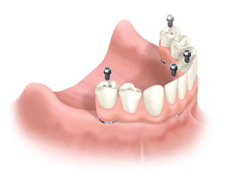 Dental Associates offers affordable dental implants to replace missing or failing teeth