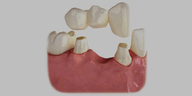 Replacing your bridge with dental implants.