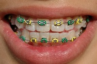 Metal braces with colored bands are a type of traditional braces treatment