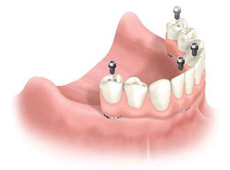 All-on-4 diş implantları, eksik dişlerin değiştirilmesi için sayısız fayda sağlar