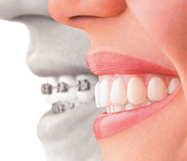 Invisalign clear braces offer many advantages to traditional braces