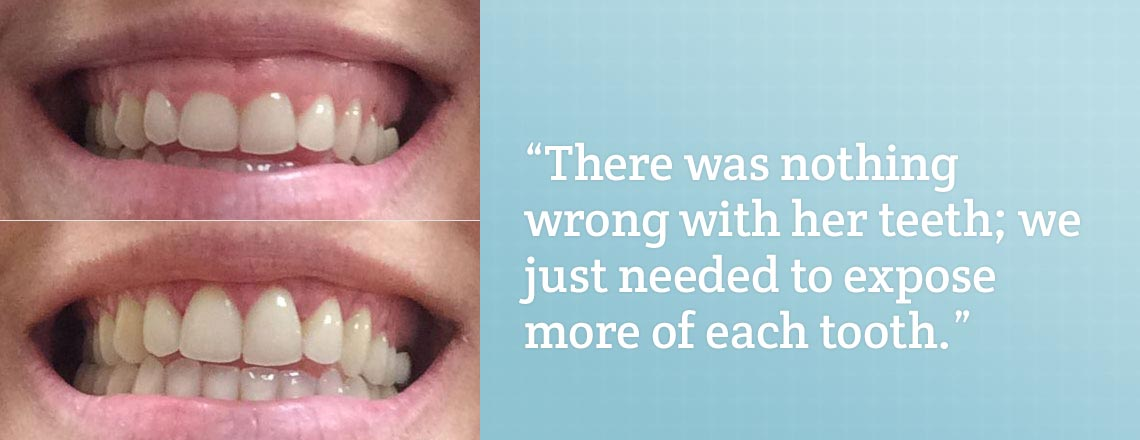Crown lengthening is a simple way to fix a gummy smile