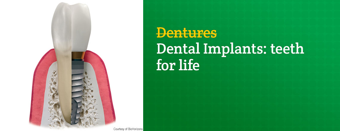 benefits-dental-implants-over-dentures.jpg