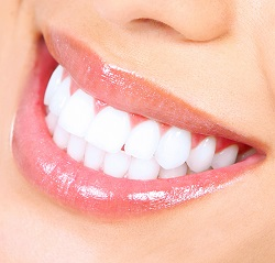 Teeth whitening is a simple way to enhance your smile and self-confidence