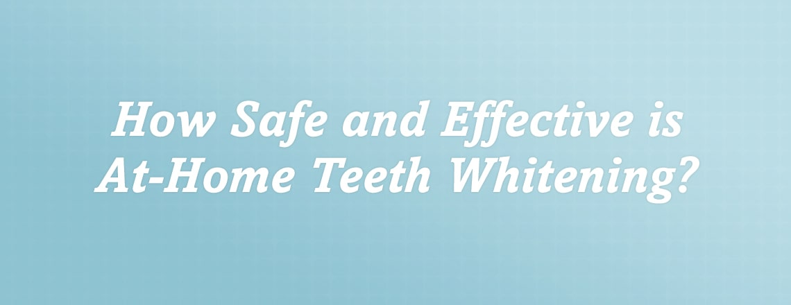 at-home-teeth-whitening.jpg