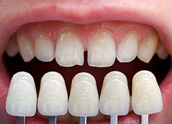 Dental veneers give stained or damaged teeth new life