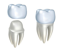 Dental crowns are placed on top of a damaged tooth to create a natural-looking replacement