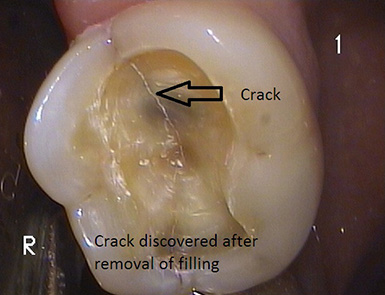 Crack In A Root Canal