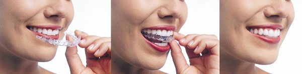 Invisalign clear braces straighten your teeth discreetly