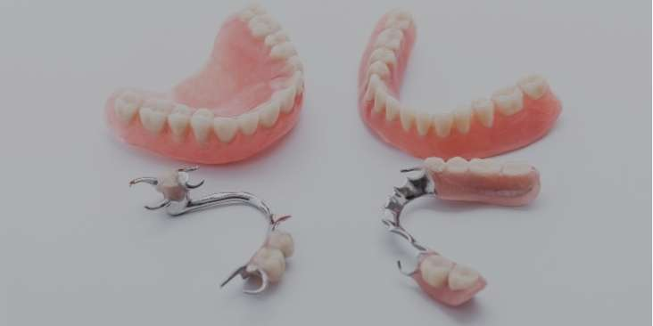 Replacing your dentures with dental implants.
