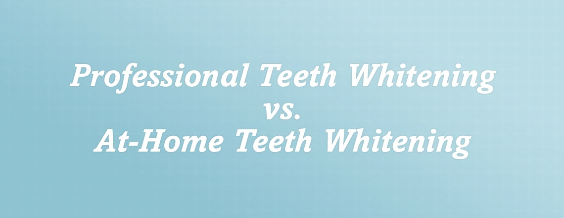 professional-teeth-whitening-vs-at-home.jpg