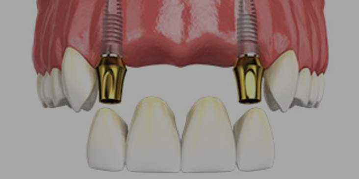Dental implants for missing several teeth.