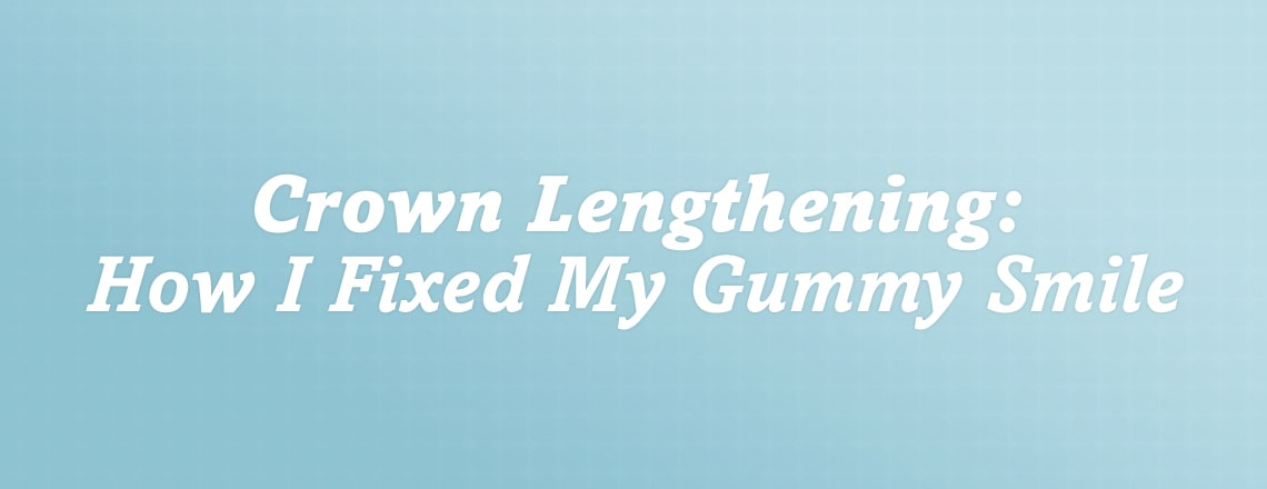 crown-lengthening-how-i-fixed-my-gummy-smile-with-simple-procedure.jpg