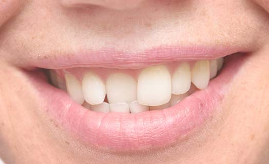 The most common cosmetic dentistry option is braces and orthodontics.