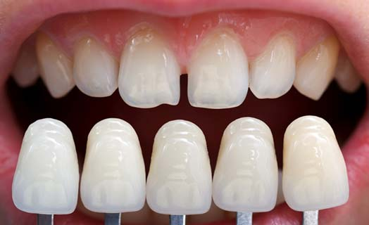 Dental veneers are a cosmetic dentistry option that give your teeth an entirely new look.