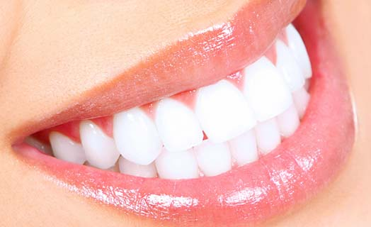 One of our most common cosmetic dentistry offers is teeth whitening.