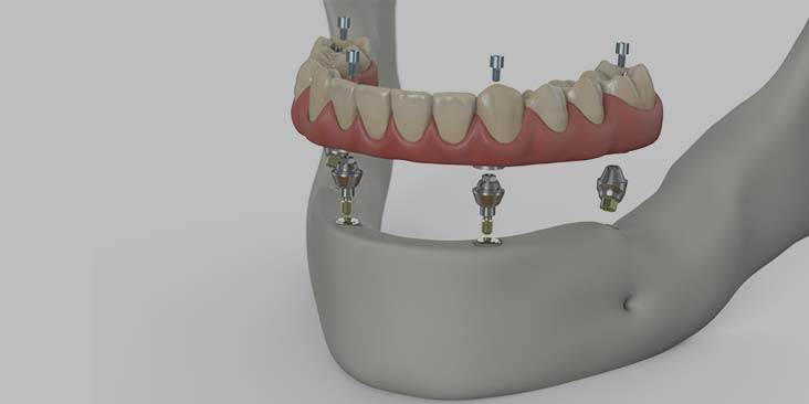 Dental implants for when you're missing all your teeth.