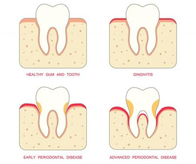 Gum disease treatment can consist of a few simple procedures to help restore damaged gums